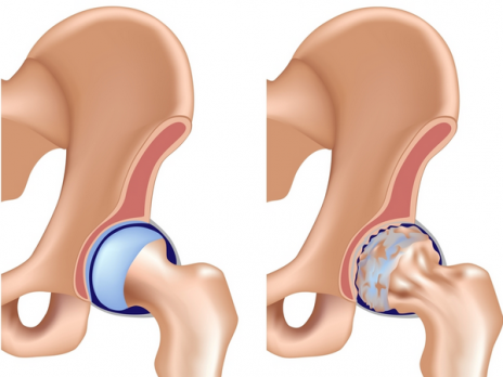 durere în articulațiile picioarelor la temperatură durere la brațul stâng în articulația cotului