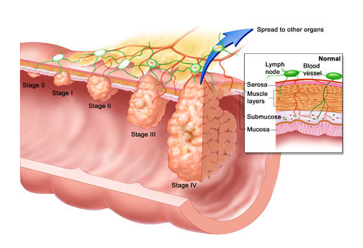 Rakovina konečníku